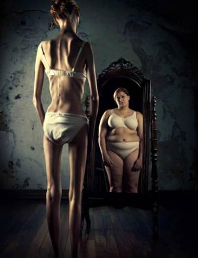 mujer-anorexica-frente-al-espejo